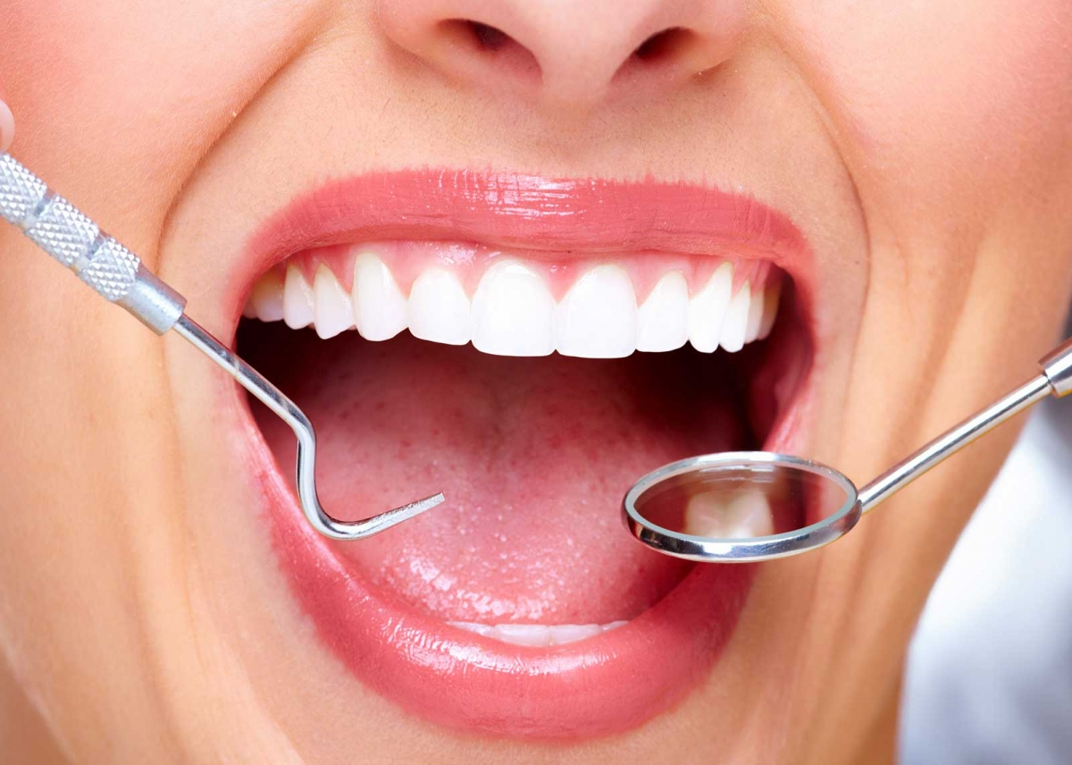 5 Things You Can Do To Protect Your Dental Veneers